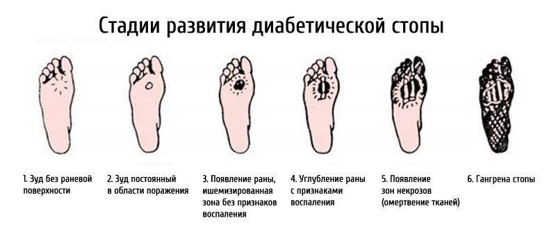 Шесть стадий
