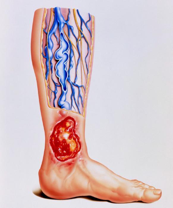 Язвы на ногах при варикозном расширении