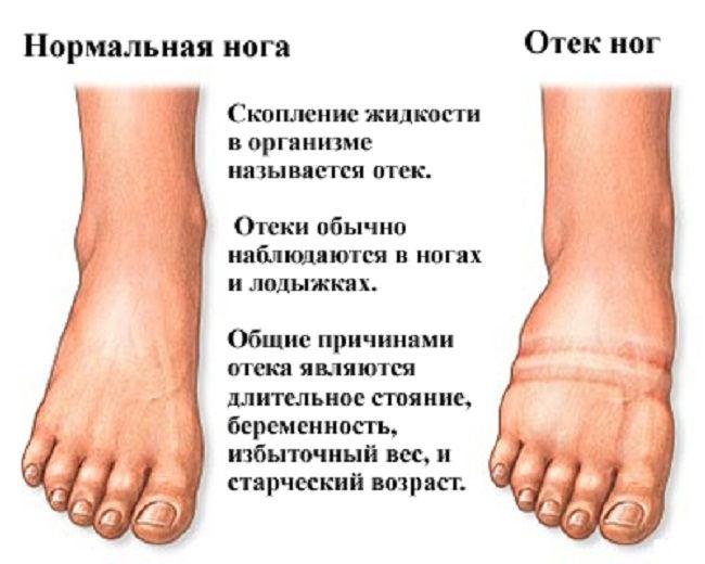 При каких заболеваниях отекают ноги