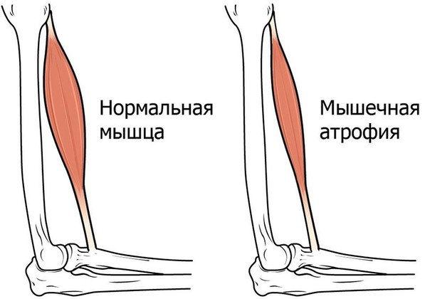 Атрофия мышц ног лечение