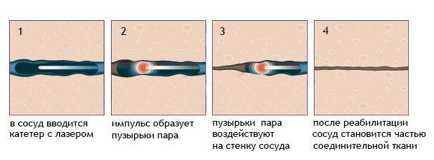 Лазерная коагуляция